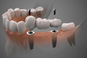 Crown about to be attached to dental implants in Edmonton, AB